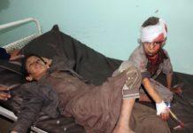 Diese Buben haben das Bombardement verletzt und geschockt überlebt, für Dutzende andere Insassen des beschossenen Schulbusses gab es keine Hilfe mehr.