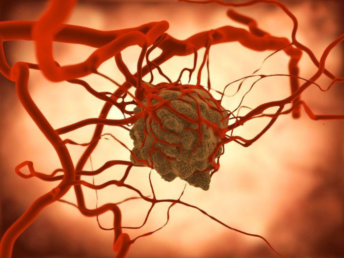 Im Kampf gegen Krebs kommt neben operativen Eingriffen, Strahlen- und Chemotherapie die Immuntherapie immer häufiger zum Einsatz.
